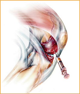 Prolotherapy-Picture